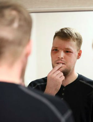 31-year-old man regains life after 'miraculous' face transplant