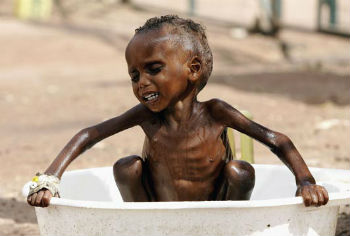 Over 20 million people in South Sudan, Somalia, Northeast Nigeria, and nearby Yemen are facing famine and starvation.