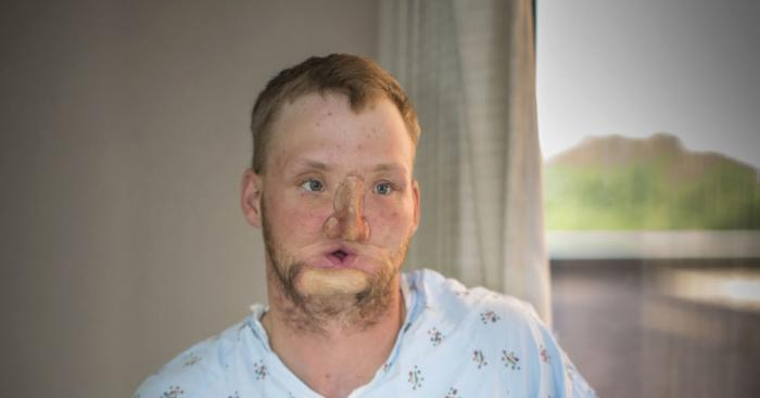 Andy Sandness, 31, receives face transplant