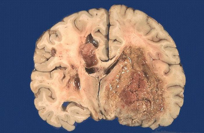 Brain Tumor CURE? Removing certain protein from brain tumors found ...