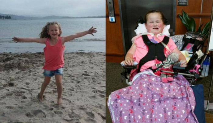 McKenzie Anderson was left completely paralyzed with exception of her left hand, feet and toes.