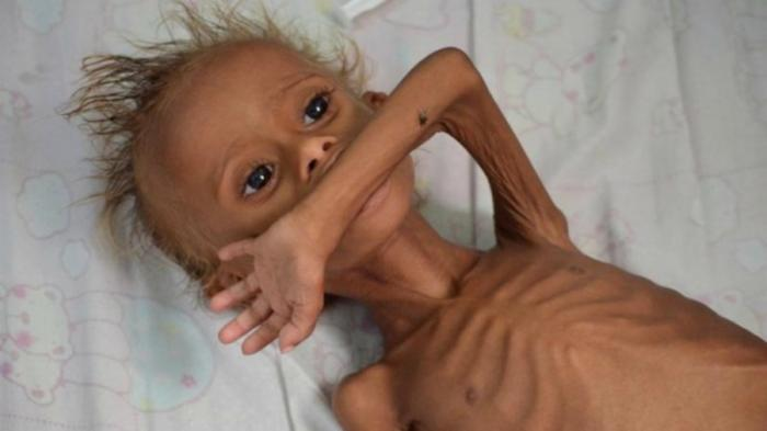 This malnourished boy lies helpless on a hospital bed in Houdieda, Yemen, while doctors sadly wait for him to pass away.