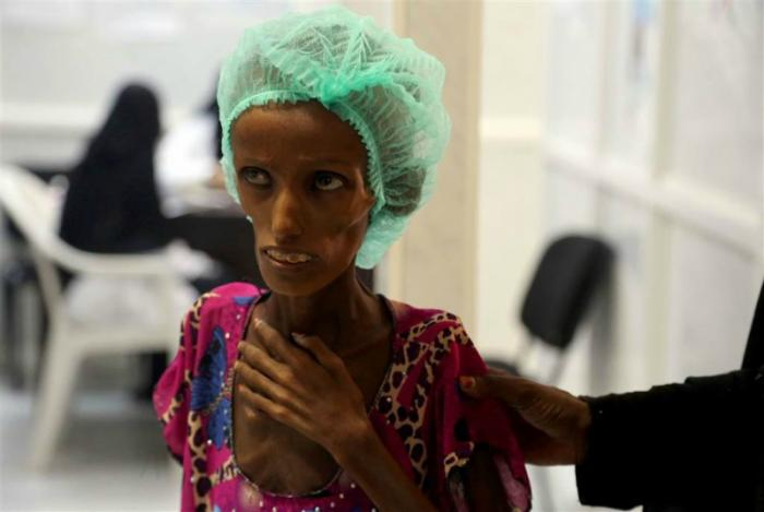 Victims of malnutrition are in desperate need.