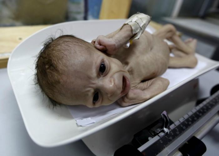 Please pray for Yemen
