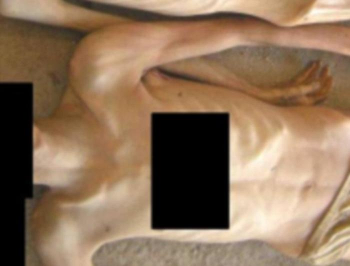 This picture is one of 55,000 taken by a Syrian military police defector showing emaciated corpses w