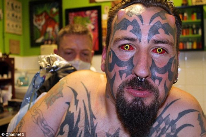 "Delenfer will suffer for his art: Since ""body modification"" is unlicensed and unregulated in the Uni"