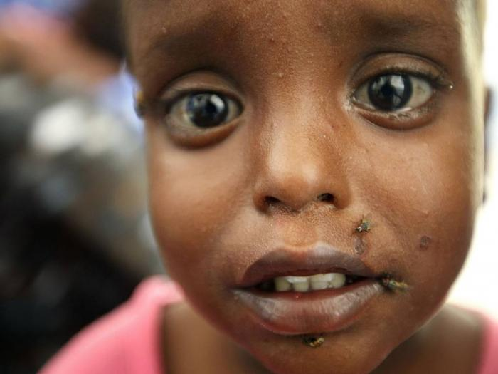 A child suffering from malnutrition and diarrhoea is seen at the Banadir hospital in the Somalian ca