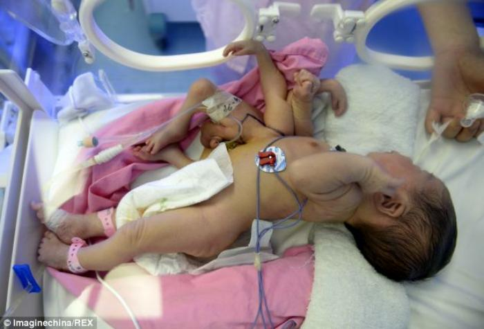 The conjoined twins weighed just over 3kg before surgery.