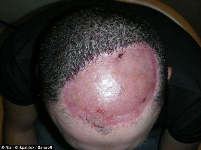 After 17 years of surgery to remove a tumor from the crown of his head, 30-year-old Chris Stoyanov f