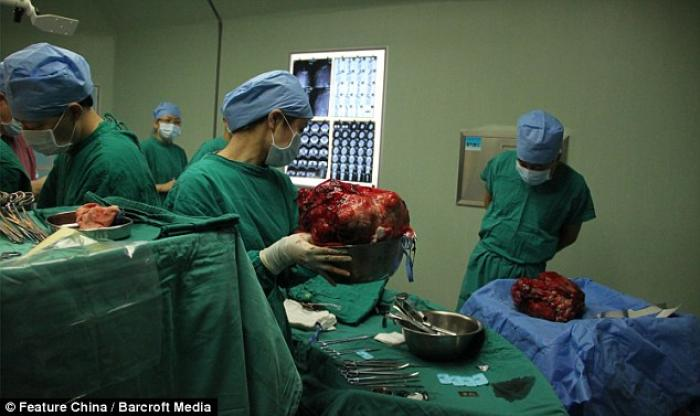 11-year-old Han Bingbing underwent eight hours of surgery to remove a 33 pound tumor from her abdome