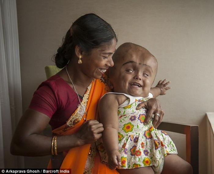 But the toddler has amazed doctors, who warned her mother Fatima, pictured, and father Abdul she wou