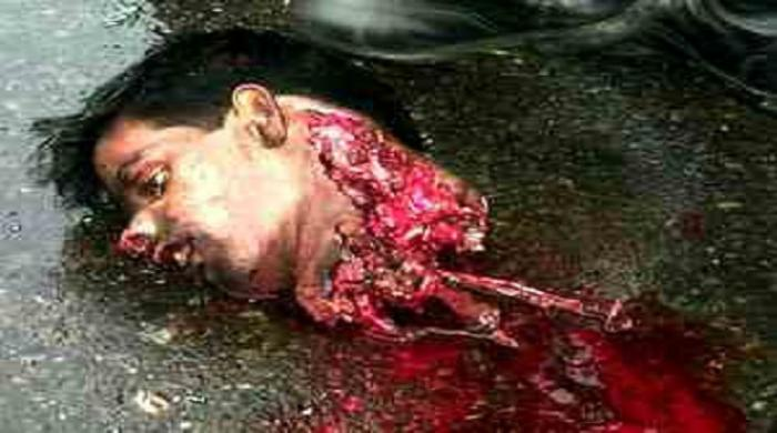 The head of a Syrian man, whose beheading was badly preformed. However, the gruesome nature of the k