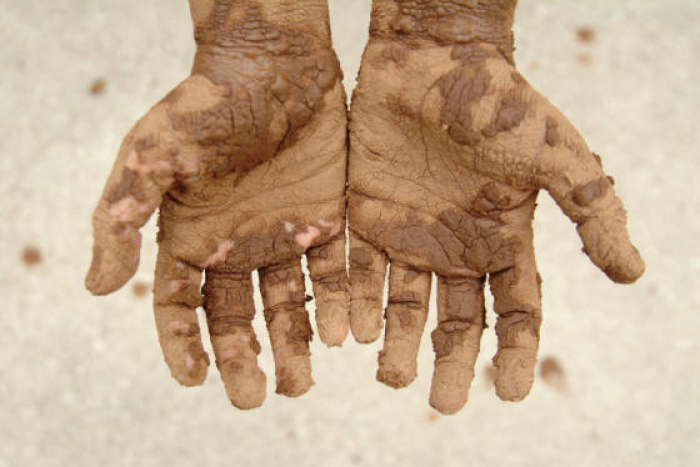 Real Christians should not be afraid to get their hands dirty to save people from their sin.
